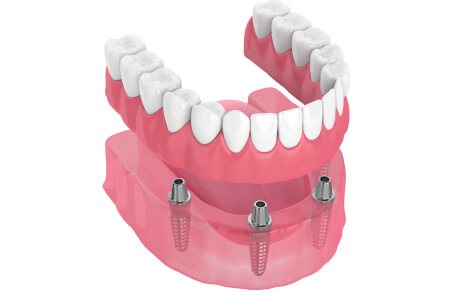 a graphic of overdentures