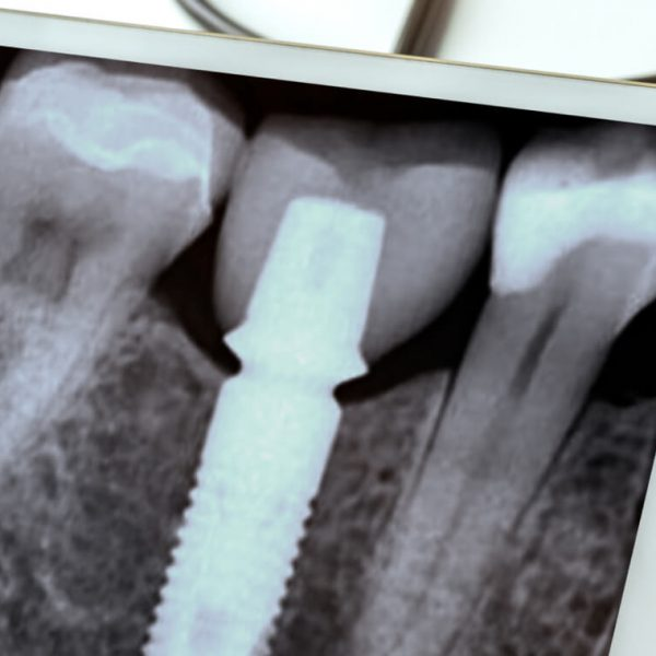 a dental x-ray with dental implants in the jawbone