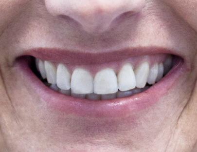 an up close image of straight and white teeth