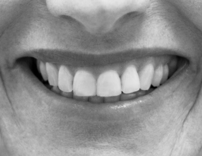 an up close image of straight and white teeth in black and white