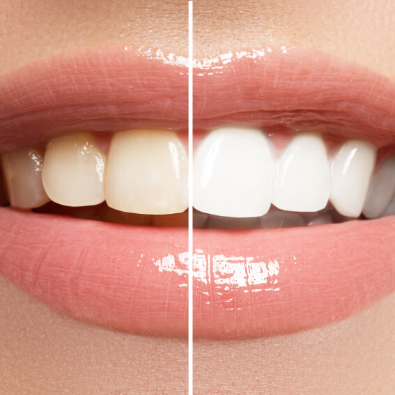 a side by side photo of half yellow teeth compared to half white teeth