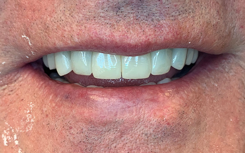 After picture of front teeth that are straight and white
