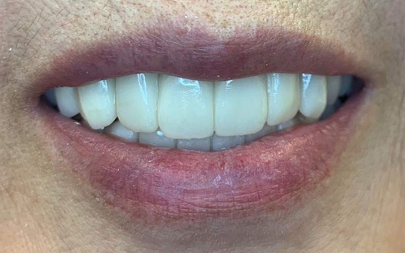 After picture of patients front teeth that are straight and white