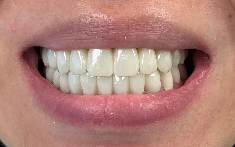 after picture of a full set of teeth that are straight and shiny