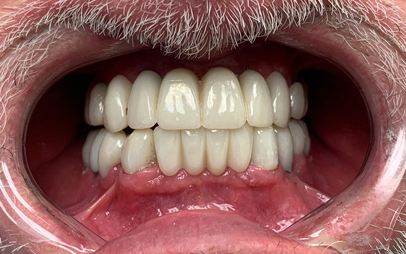 after picture of full set of teeth that are shiny and straight