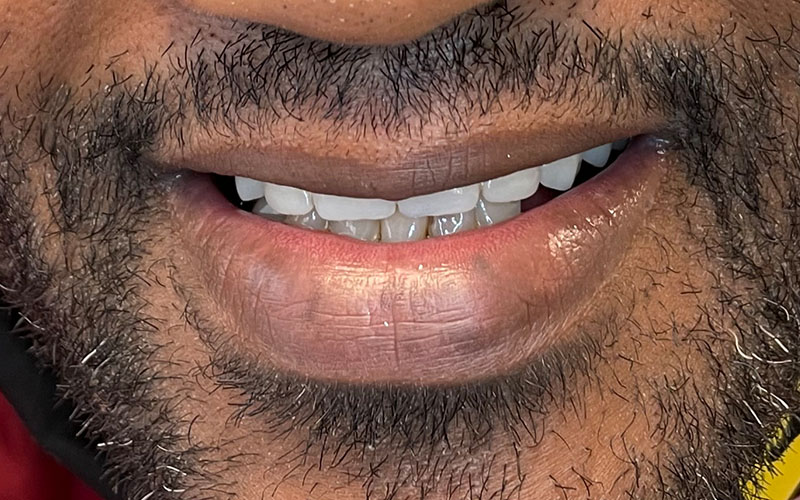After picture of patient with a new full set of shiny teeth