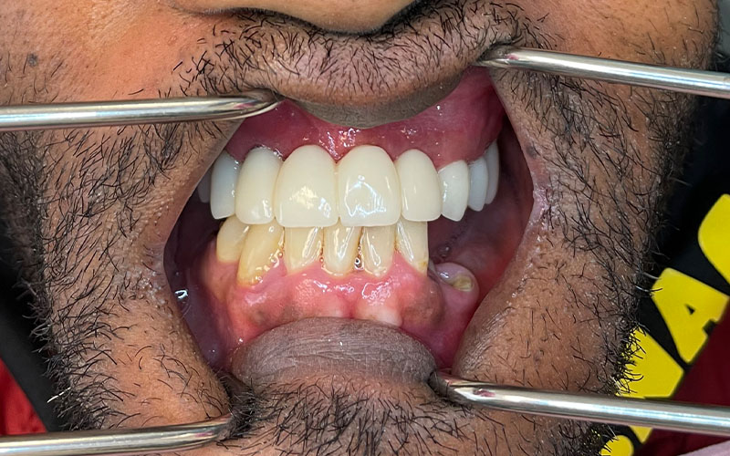 After picture of patient with new front teeth that are shiny