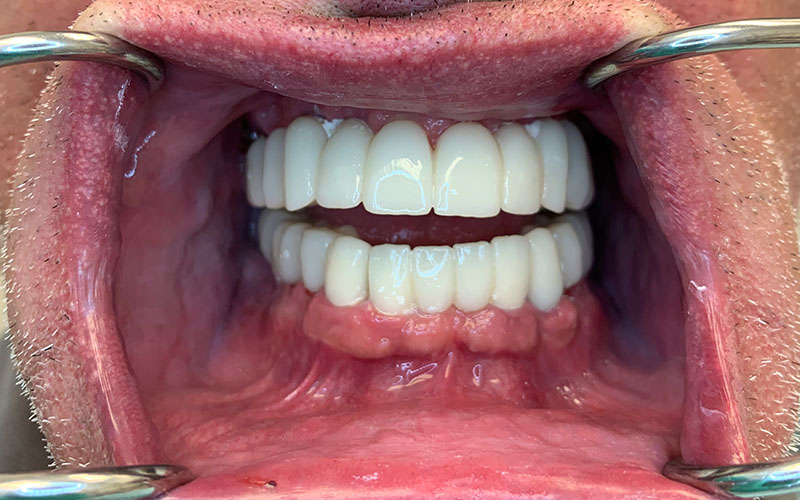 after picture of a new full set of naturally beautiful teeth