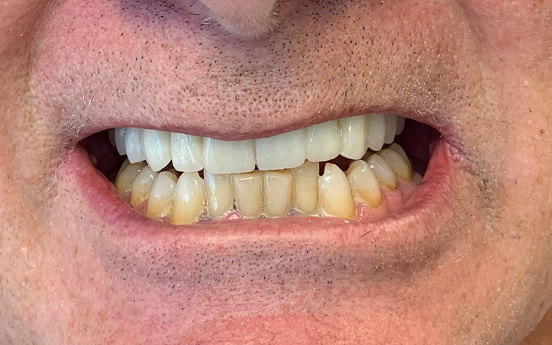 after picture of front teeth that are now white and straight