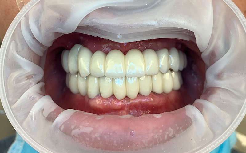 after photo of perfectly straight and white teeth