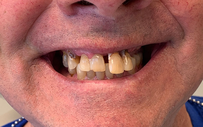Before picture of crooked and gapped yellowed teeth
