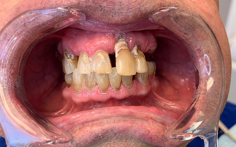 Before picture of patient missing teeth, with crooked, decayed, and yellow teeth on both arches