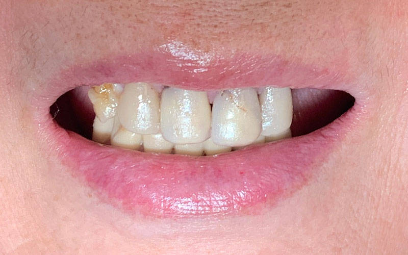 before picture of front teeth that are crooked, decayed, and cracked