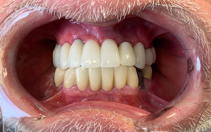 before picture of full set of teeth that have dark gums and are yellow on the bottom arch
