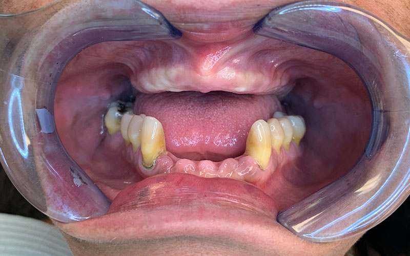 before picture of patient with no front teeth and missing bottom front teeth